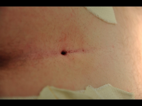 Communication on this topic: How to Remove a Cyst on Your , how-to-remove-a-cyst-on-your/