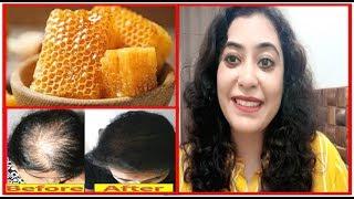 मधुमक्खी के छत्ते से पाएँ गंजेपन से छुटकारा// गंजेपन और बालों के गिरने का 100% Effective नुस्खा