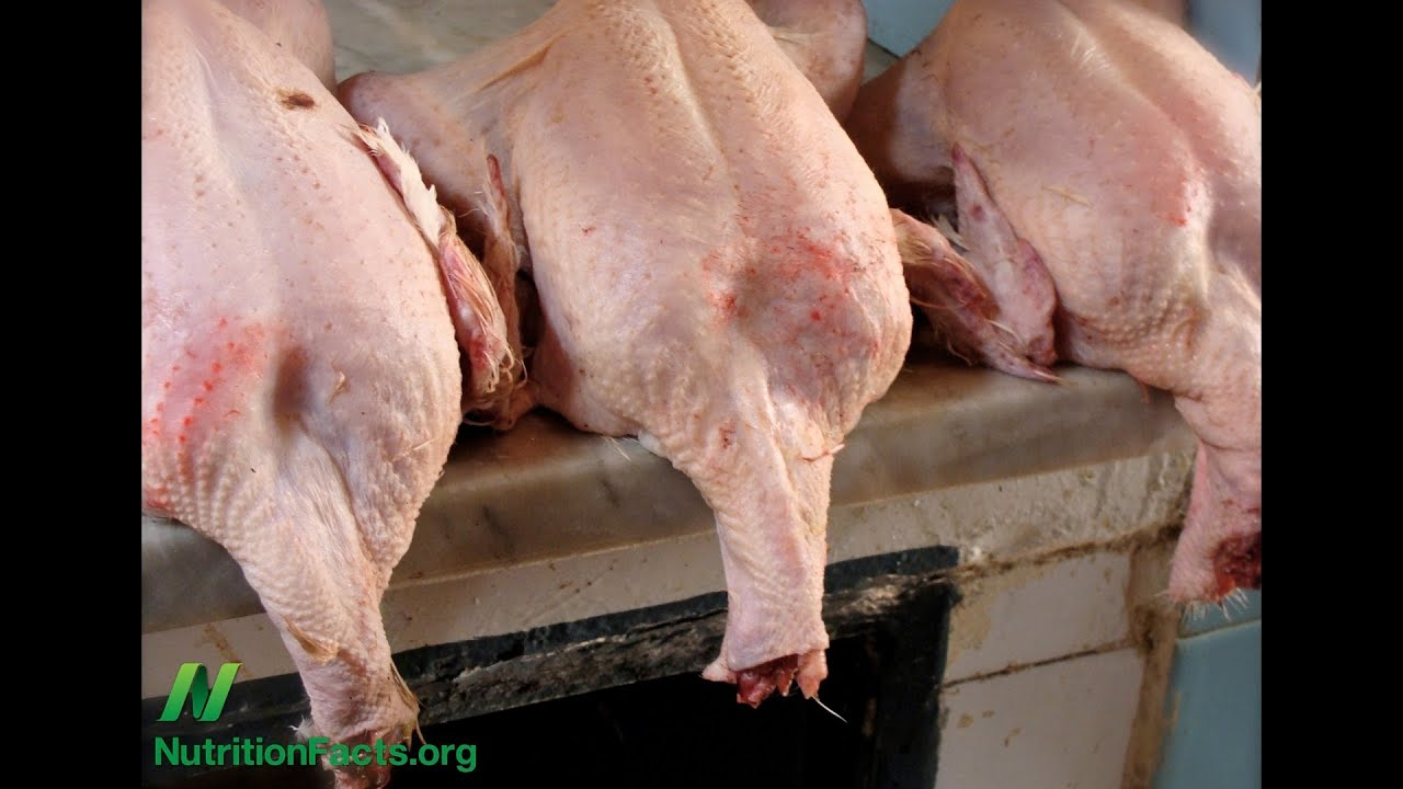 Poultry Exposure and Neurological Disease