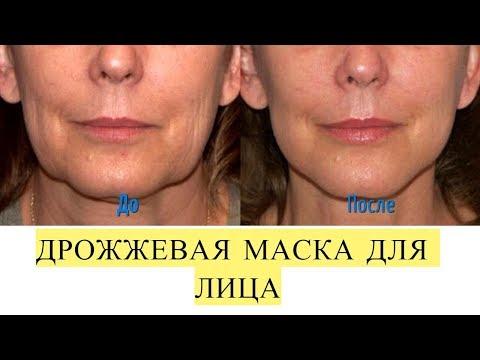 Как быстро омолодить лицо на 5-10 лет без шприца и скальпеля.