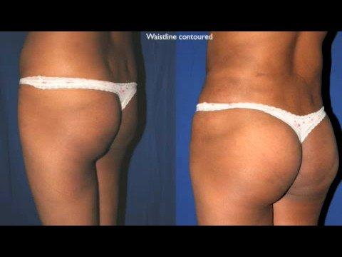 Implanty pośladków (Przed i po zabiegu)
