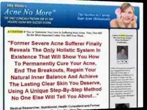Acne No More Review - Does it Really Contain the Secrets to Cure Your Acne