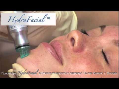 HydraFacial в АСтар Клиник (косметология лица и тела)