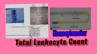 Total Leukocyte Count (TLC) by Hemocytometer, chamber count for MLT student