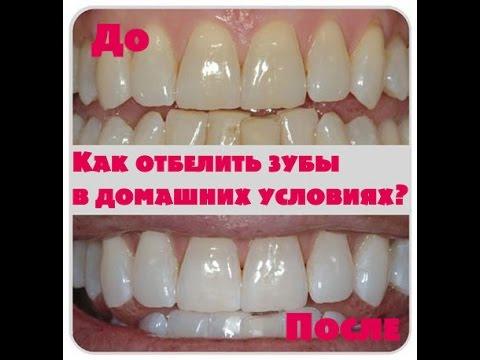 Как отбелить зубы в домашних условиях за один час без вреда
