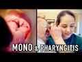 MONO & PHARYNGITIS (Crazy Story) | Dr. Paul