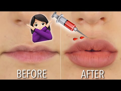 HOW TO GET FULLER LIPS AT HOME | NO FILLER | DIY | Hannah Dorman - YouTube