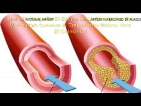 tratamiento para el colesterol y trigliceridos - YouTube