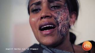 a tragic story of a woman who attack acid by her husband KETEZEGAW DOSE EPISODE 82 PART 2