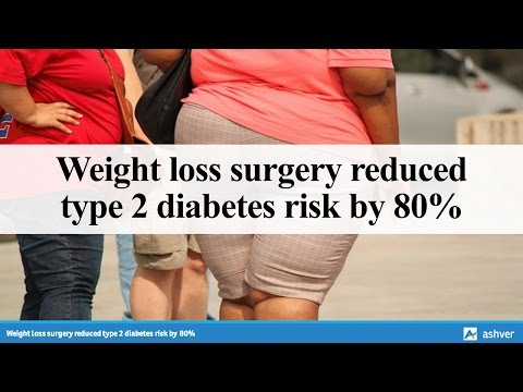 Weight loss surgery reduced type 2 diabetes risk by 80%