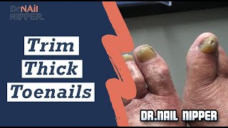 Hey sailor, how about we trim your thick toenails.  Dr Nail Nipper's Feature Friday (2020)