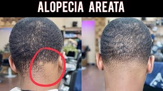 ALOPECIA AREATA | HOW TO BLEND IN BALDNESS | VERY INFORMATIVE