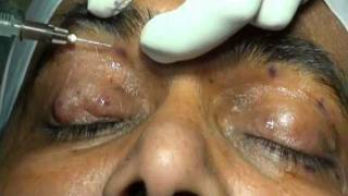 Botulinum Toxin Injection for Blepharospasm by Dr Vidushi Sharma at SuVi Eye Kota India.mpg