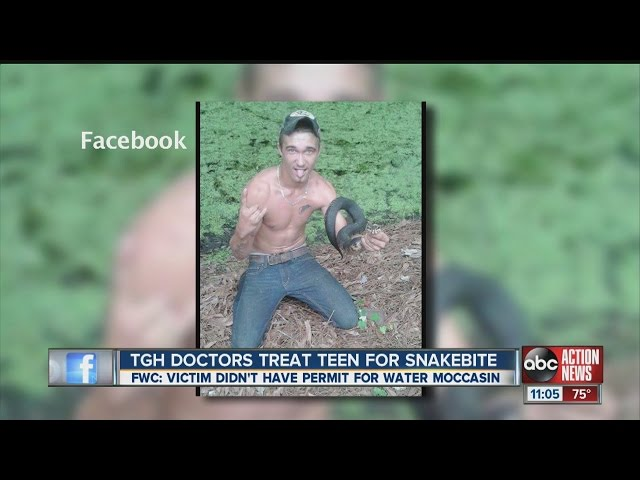 Teen bitten in face by poisonous water moccasin