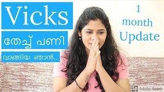 വിക്സ് തേച്ചു ഒരു മാസത്തിനു ശേഷം| Vicks Vaporub for Hair Growth| Malayali Youtuber