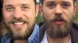 6 Tips to Fix Patchy Beard