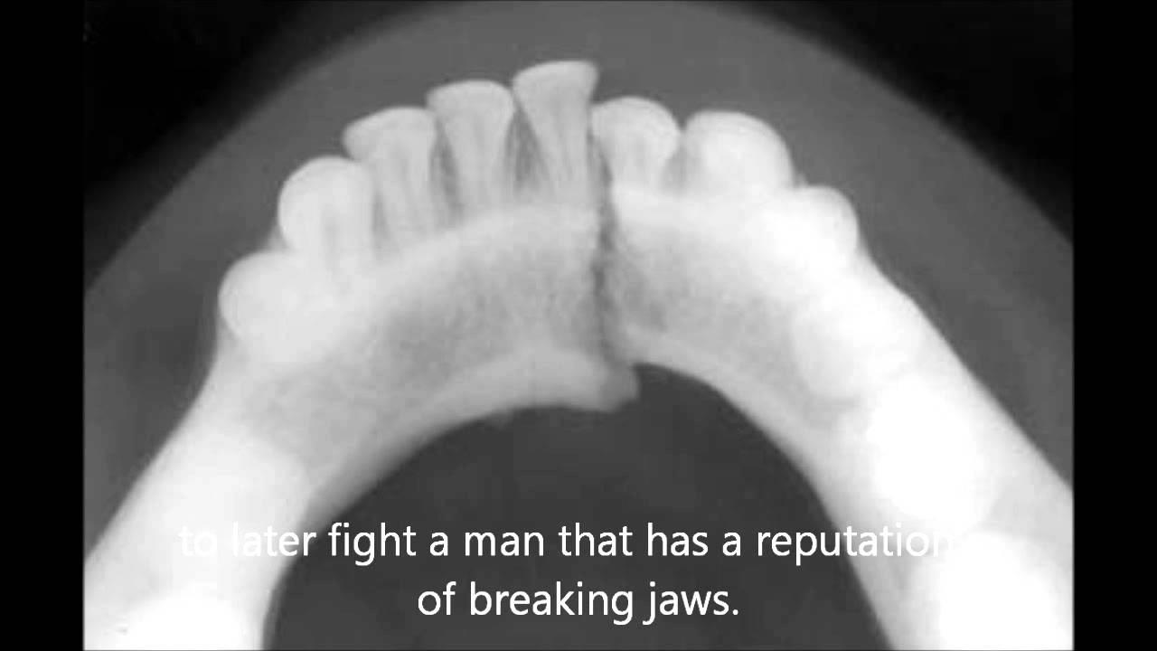 X Ray Broken Nose VICTOR ORTIZ BROKEN JAW