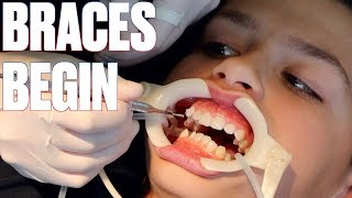 GETTING BRACES FOR THE FIRST TIME | HOW TO SHORTEN TIME WITH BRACES BY SIX MONTHS!