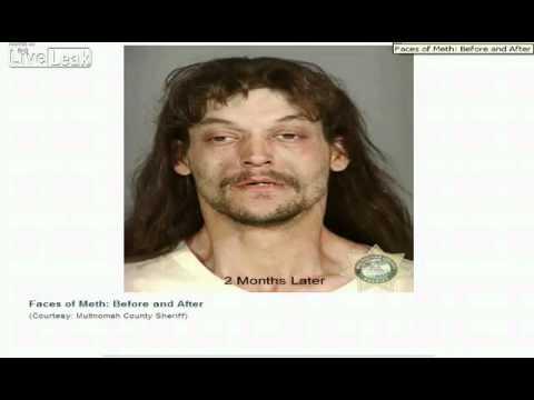 Лица до и после применения наркотиков