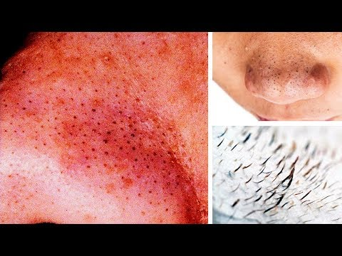 How to Remove Blackheads From Nose at Home