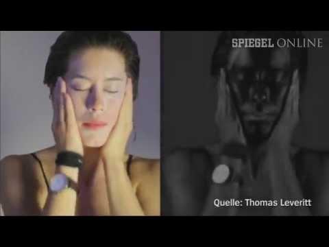 Virales UV-Schockvideo: Das geht unter die Haut