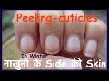 How To Get Rid Of Peeling Skin On Fingertips In Hindi  peeling cuticle | नाखुनो के Side की Skin