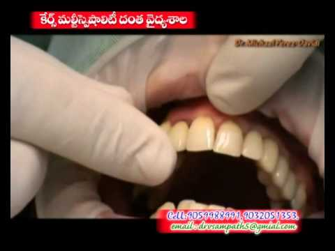 cares-dental-khammam.html