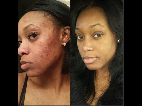 My Acne Story & Accutane Journey | Before & After | No Makeup