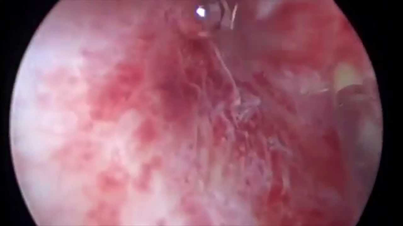 Гистероскопия, хроническии? эндометрит, полипоз эдндометрия звук - YouTube