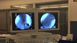 Fluoroscopy PREVIEW
