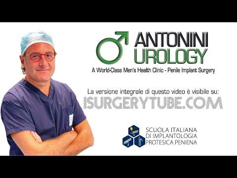 Espianto e reimpianto protesi peniena idraulica Dott  Gabriele Antonini Andrologia Chirurgica Ricost