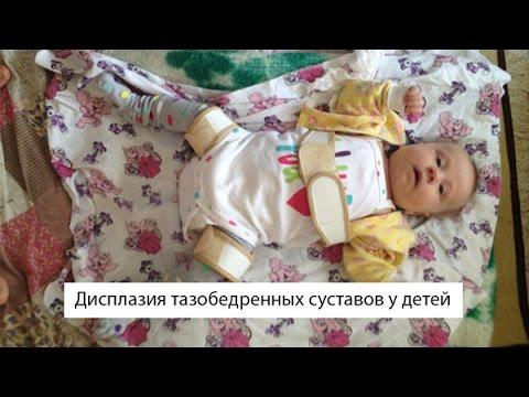 дисплазия тазобедреных суставов ребенку 3 месяца