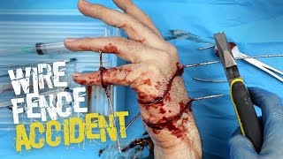 Wire fence accident SFX makeup tutorial