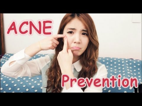 Acne Prone Skin Series #1-How to prevent it!