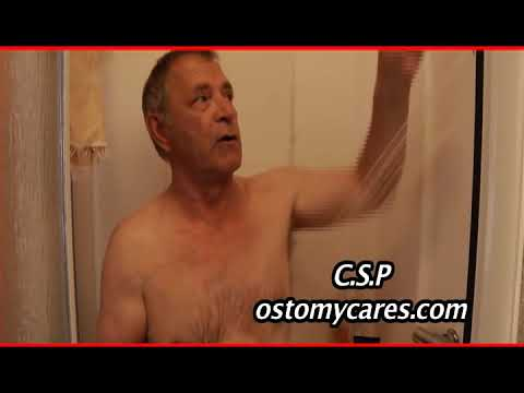 ostomy pouch change in 3 Easy Steps