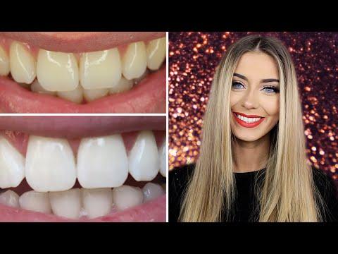 How I Whitened My Teeth At Danielle Mansutti