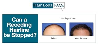 Can propecia stop receding hairline