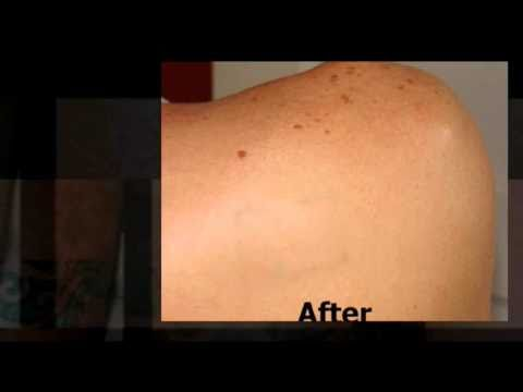 Tattoo removal cream how to make do everything for Tattoo removal cream review