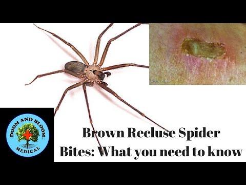Brown Recluse Spider Bite First Stage  Animalia World