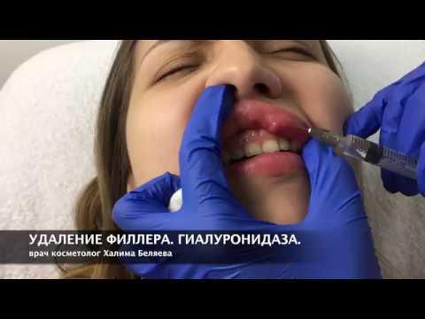 Удаление геля из губ. ГИАЛУРОНИДАЗА. ЛИДАЗА.