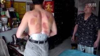 BEST Chinese Chiro EVER! (Patient 4)