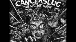 Watch Cancerslug The Serpents Eye video