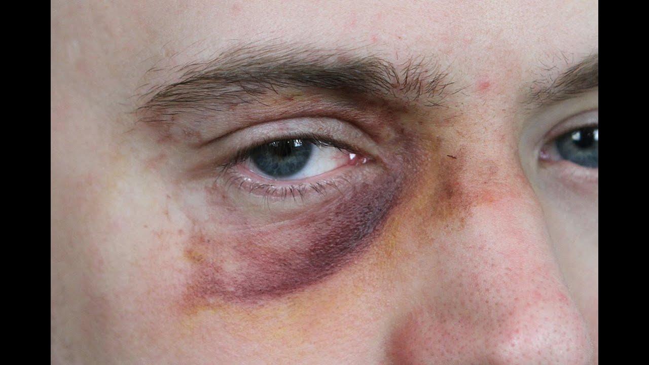 Black Eye Makeup Sfx Beginner S Tutorial Youtube