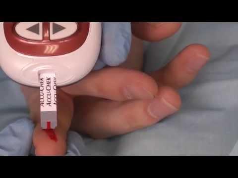 Capillary blood glucose- OSCE