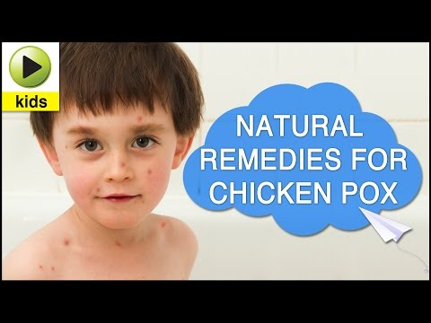 Kids Health: Chicken Pox - Natural Home Remedies for Chicken Pox