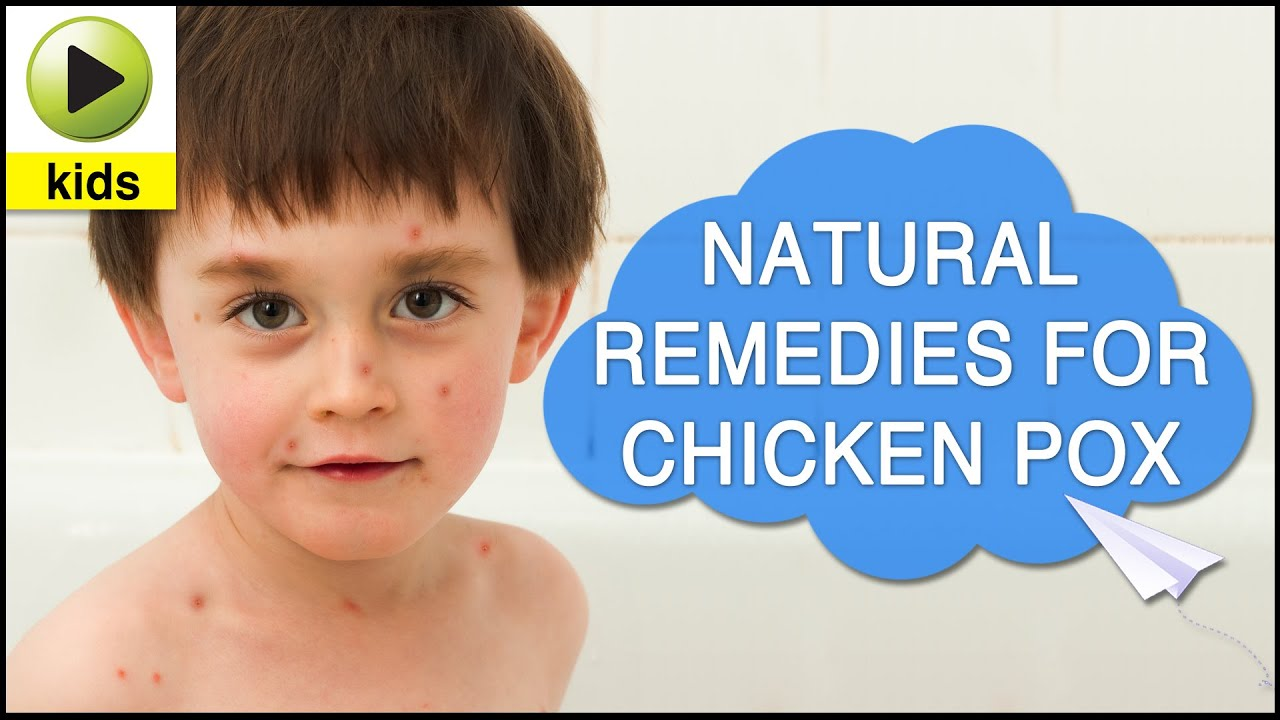 home remedies for chickenpox essay Learn how to get rid of chickenpox scars with the help of lemon, vitamin e, coconut oil and many more to get rid of chicken poxscars quickly.