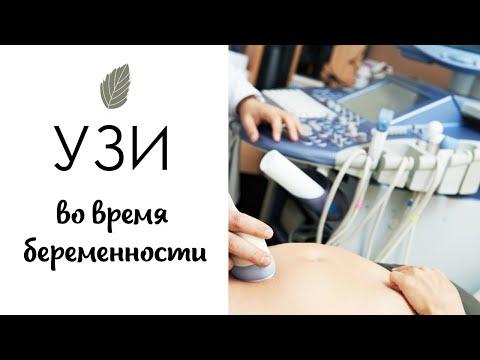 Узи для беременных арзамас