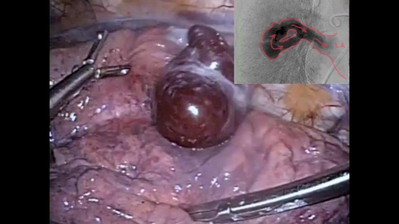 Артериовенозная аневризма фото