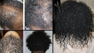 She REVERSED SEVERE Traction Alopecia (Naturally) In 2 Yrs - Subscriber Highlight #1