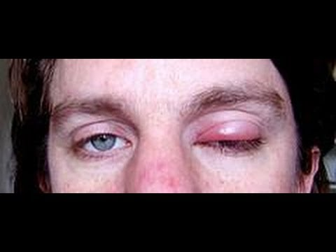 how to get rid of an internal stye